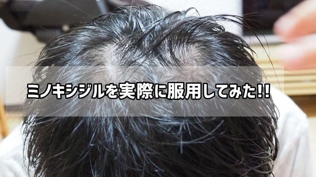 ミノキシジルタブレットの効果は?ビフォーアフター写真を公開!!まじで毛が生えてきたw